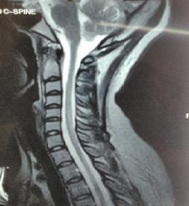 Figure 2 : IRM du rachis cervical en coupe sagittale séquence T2 montrant un hyper signal intramédullaire