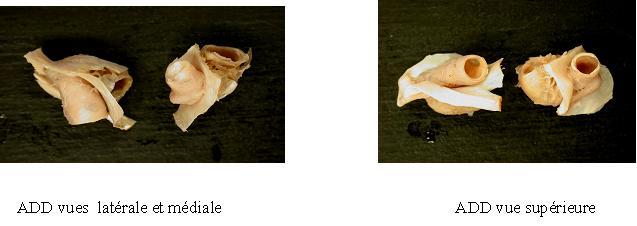 AN1.jpg