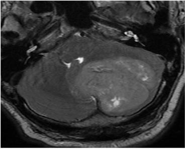 Figure 1: T2-Weighted MRI of cerebellar tumour.