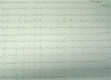 Figure 5: tracé EEG du patient 3