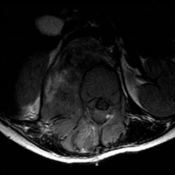 Fig n°1 : Coupe axiale T1. Processus tissulaire à point de départ musculaire paravertébral droit, de signal hétérogène  avec extension intra-canalaire.