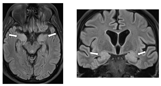 Figure 1: MRI findings in limbic encephalitis