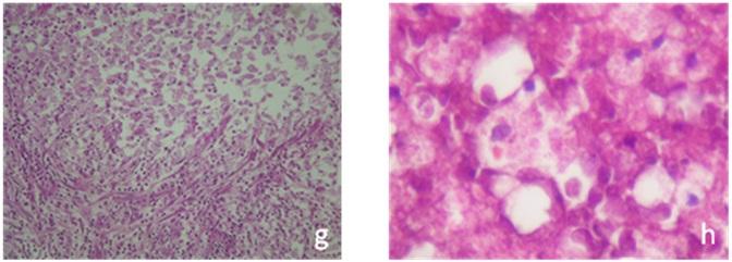 Fig.3-B (g et h)