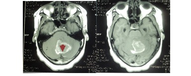 Figure 2: Pre- and post- contrast enhanced T1 weighted MRI images showing a hyperintense midline cerebellar mass with a hypointense core (arrow-head), minimal perilesional edema and mild enhancement with contrast.