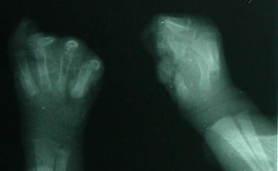 Figure 2: (Radiographie de face des mains)