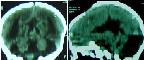 Figure 4 a, b: (TDM cérébrale reconstructions coronale et sagittale)