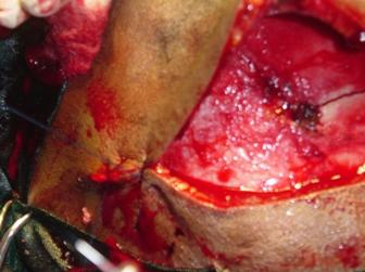 Figure 5 : Intraoperative image showing one layer closure of bicoronal wound in progress