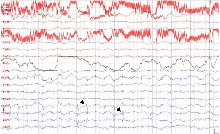 Figure 2:  EEG showing spikes in the frontal area. (See arrows)